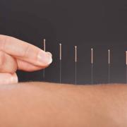 Akupunktur og stofskifte
